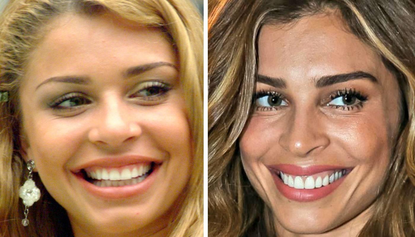 Veja tudo o que precisa saber antes de colocar facetas dentárias em Goiânia. A atriz Grazi Massafera já passou pelo procedimento| Foto: Reprodução
