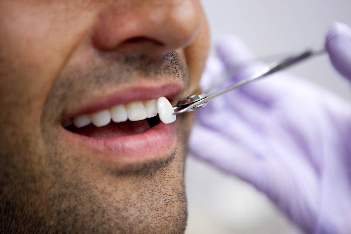 facetas dentárias em Goiânia podem ser de porcelana ou resina | Foto: Reprodução
